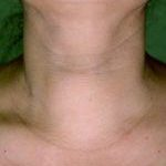 Huge multinodular thyroid before RFA